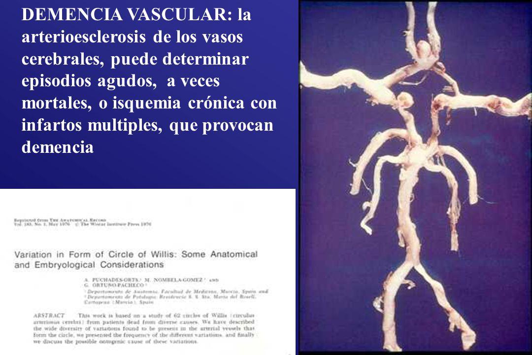 DEMENCIA VASCULAR: la arterioesclerosis de los vasos cerebrales, puede determinar episodios agudos, a veces mortales, o isquemia crónica con infartos multiples, que provocan demencia