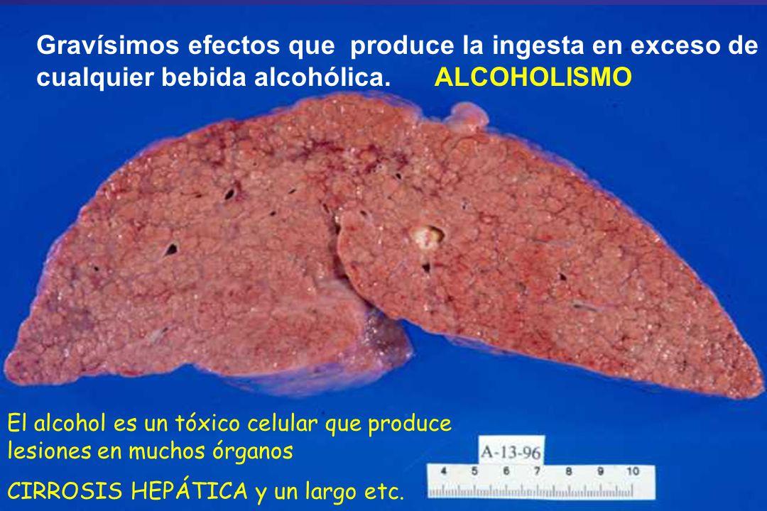 Gravísimos efectos que produce la ingesta en exceso de cualquier bebida alcohólica. ALCOHOLISMO