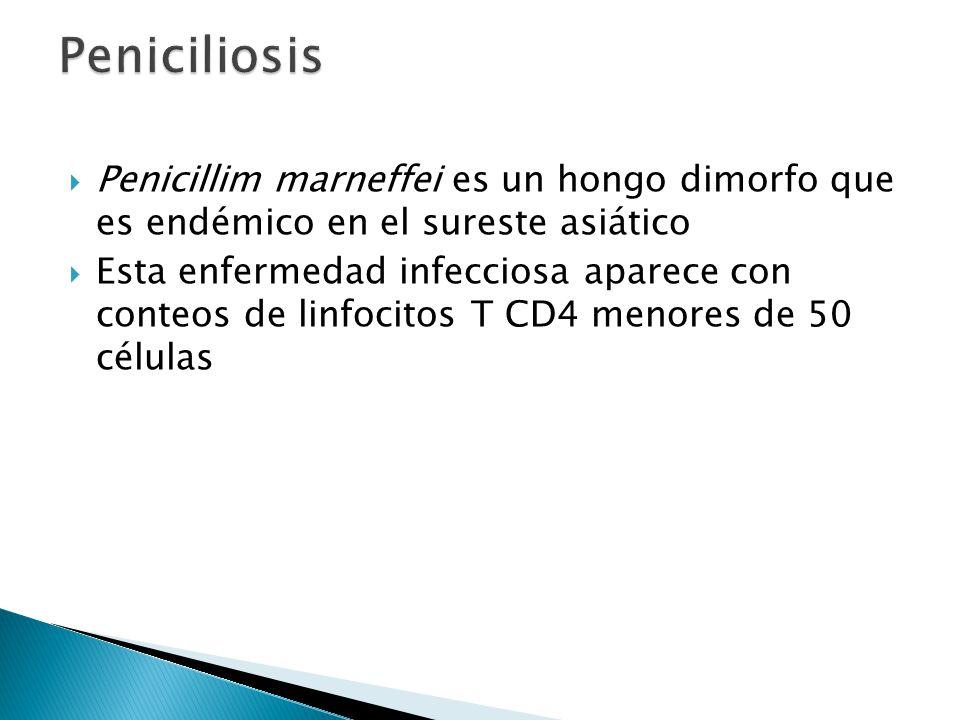 Peniciliosis Penicillim marneffei es un hongo dimorfo que es endémico en el sureste asiático.
