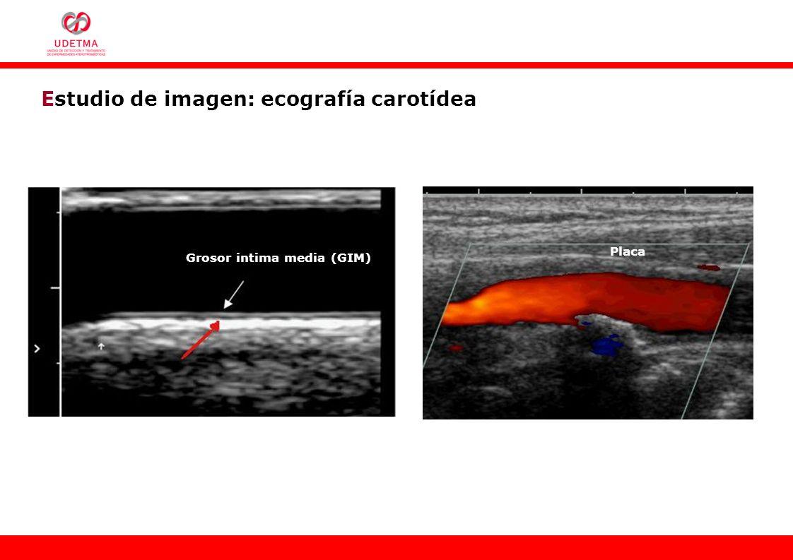 Estudio de imagen: ecografía carotídea