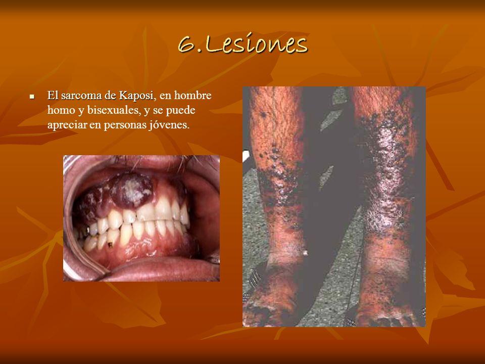 6.Lesiones El sarcoma de Kaposi, en hombre homo y bisexuales, y se puede apreciar en personas jóvenes.