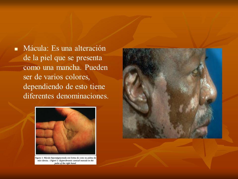 Mácula: Es una alteración de la piel que se presenta como una mancha