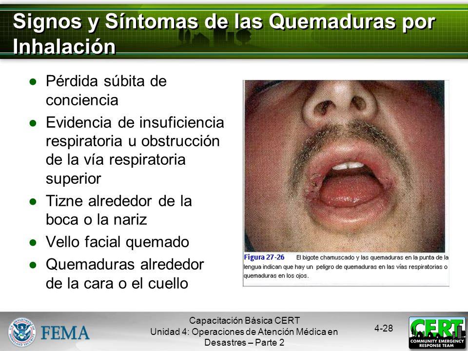 Signos y Síntomas de las Quemaduras por Inhalación