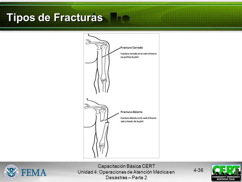 Tipos de Fracturas Capacitación Básica CERT