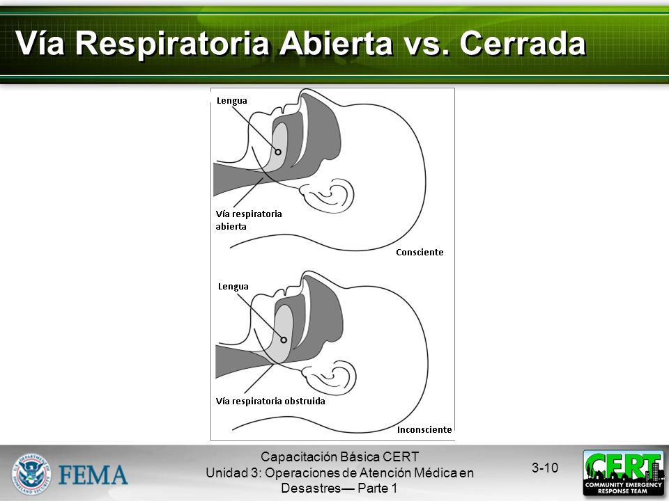 Vía Respiratoria Abierta vs. Cerrada