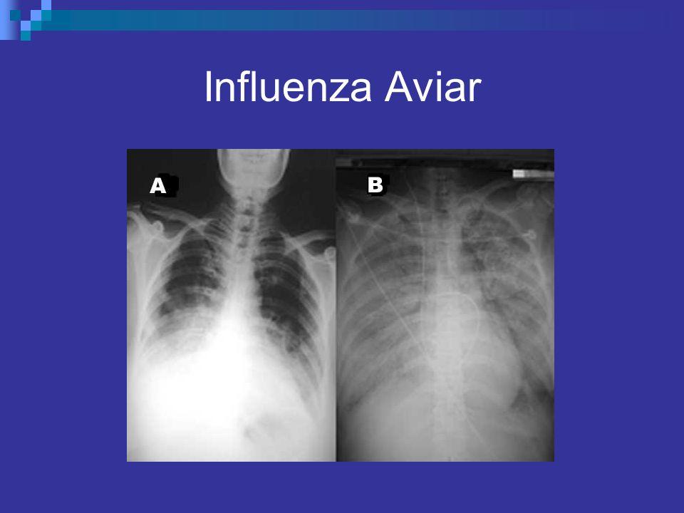 Influenza Aviar