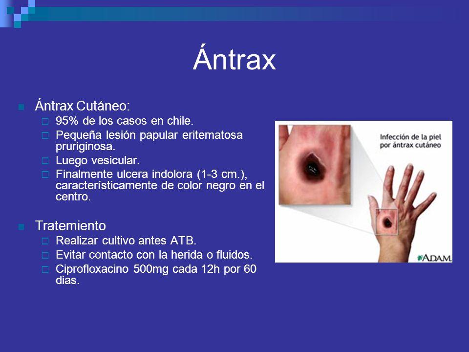Ántrax Ántrax Cutáneo: Tratemiento 95% de los casos en chile.