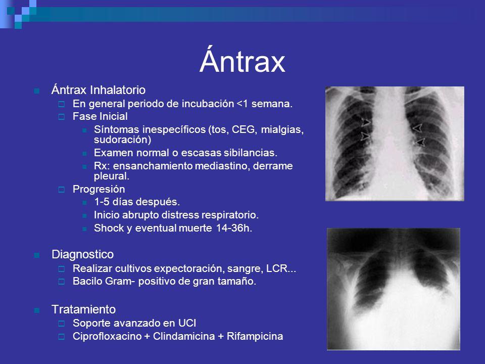 Ántrax Ántrax Inhalatorio Diagnostico Tratamiento