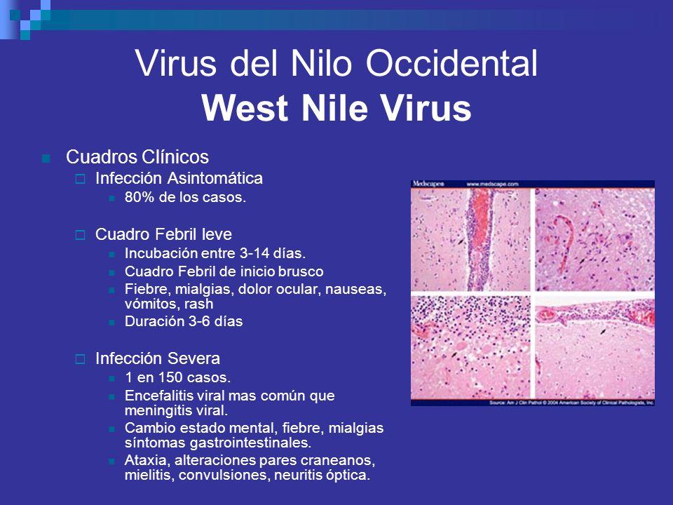 Virus del Nilo Occidental West Nile Virus