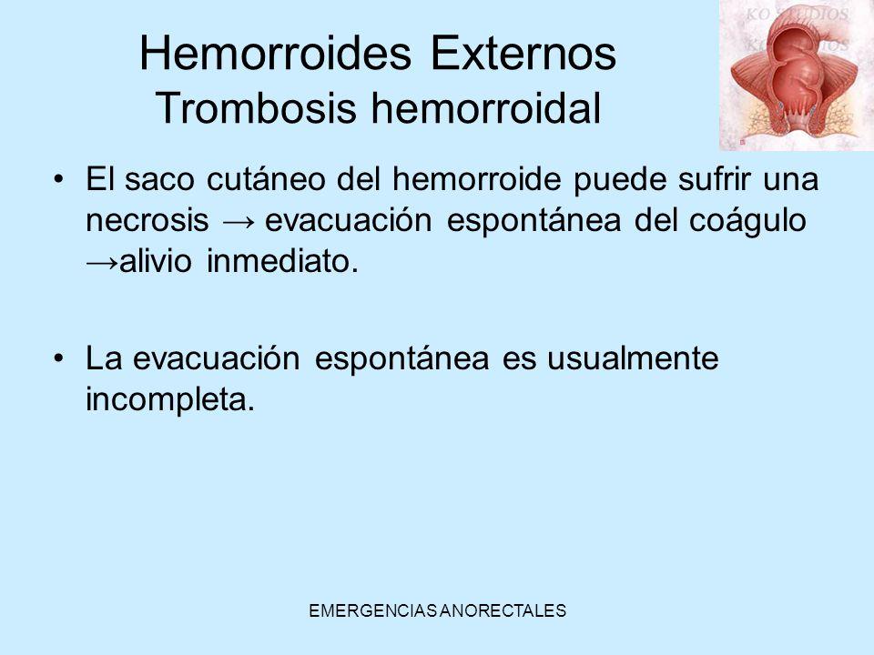Hemorroides Externos Trombosis hemorroidal