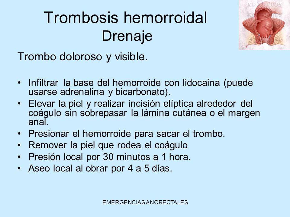 Trombosis hemorroidal Drenaje