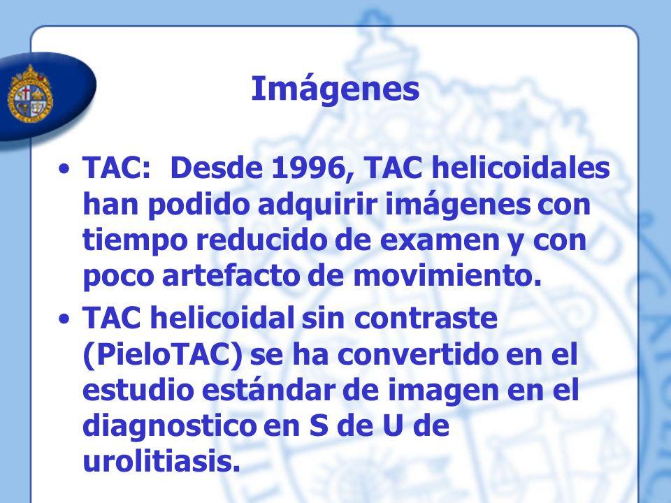 Imágenes TAC: Desde 1996, TAC helicoidales han podido adquirir imágenes con tiempo reducido de examen y con poco artefacto de movimiento.