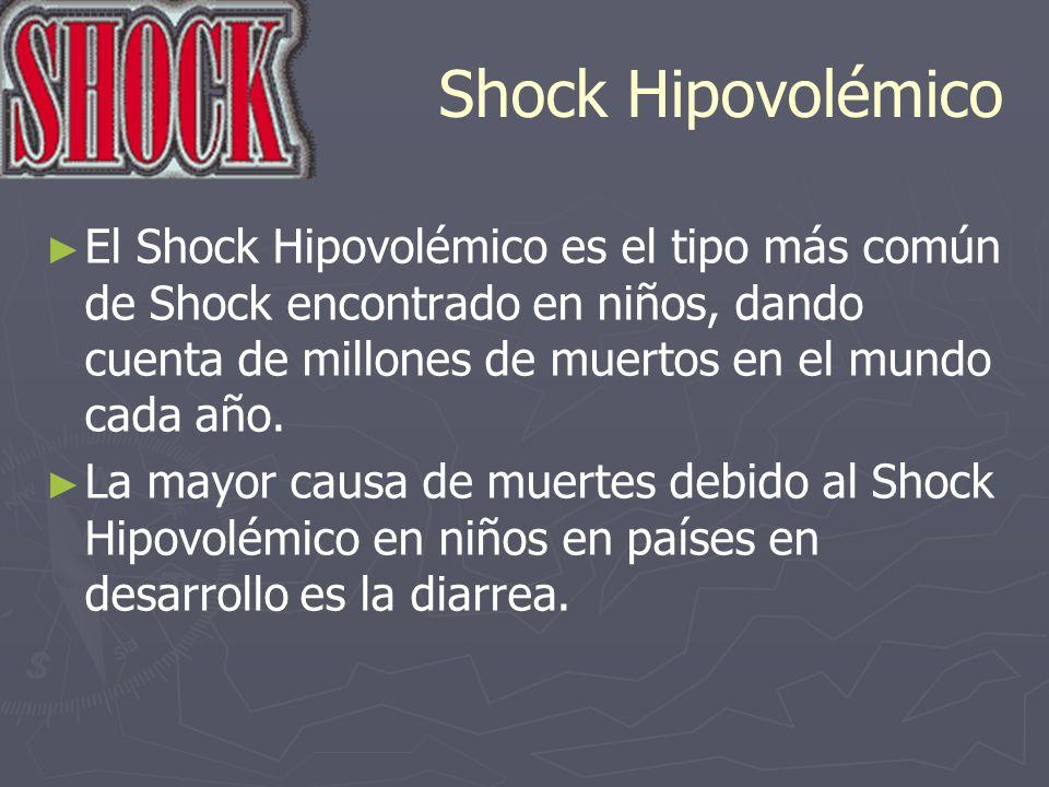 Shock HipovolémicoEl Shock Hipovolémico es el tipo más común de Shock encontrado en niños, dando cuenta de millones de muertos en el mundo cada año.