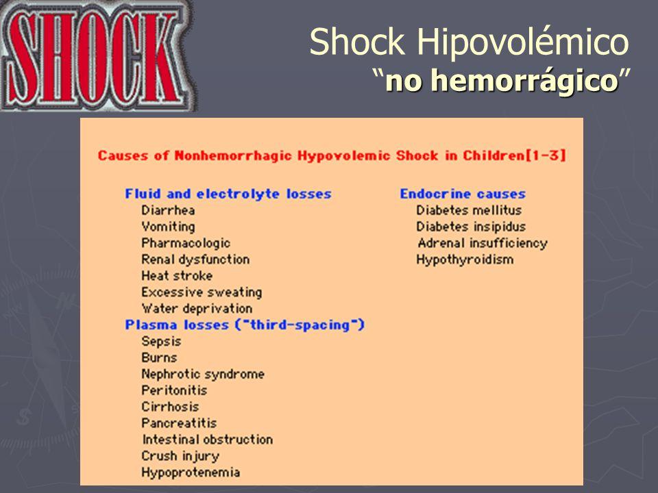 Shock Hipovolémico no hemorrágico