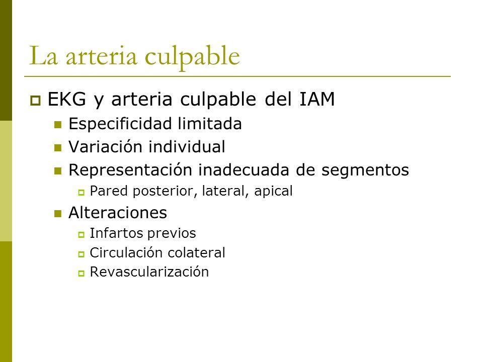 La arteria culpable EKG y arteria culpable del IAM