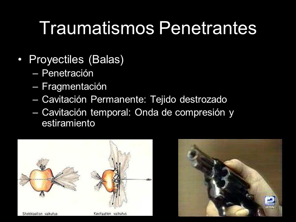 Traumatismos Penetrantes