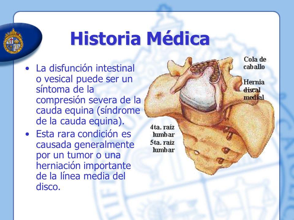 Historia Médica La disfunción intestinal o vesical puede ser un síntoma de la compresión severa de la cauda equina (síndrome de la cauda equina).