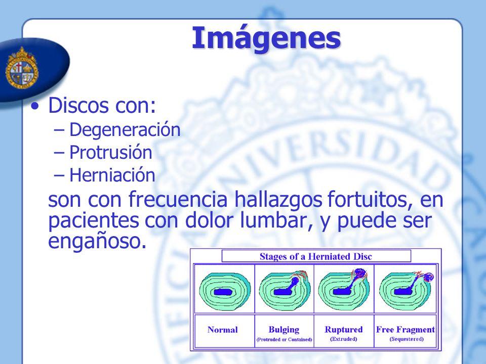 Imágenes Discos con: Degeneración. Protrusión. Herniación.