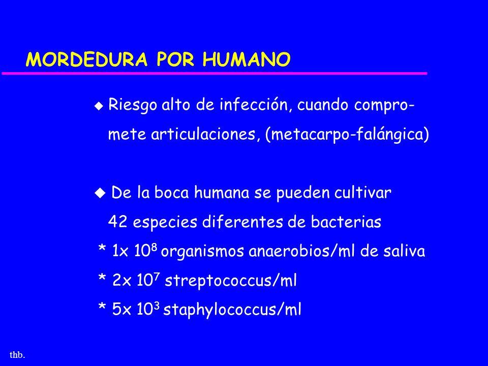 MORDEDURA POR HUMANO mete articulaciones, (metacarpo-falángica)