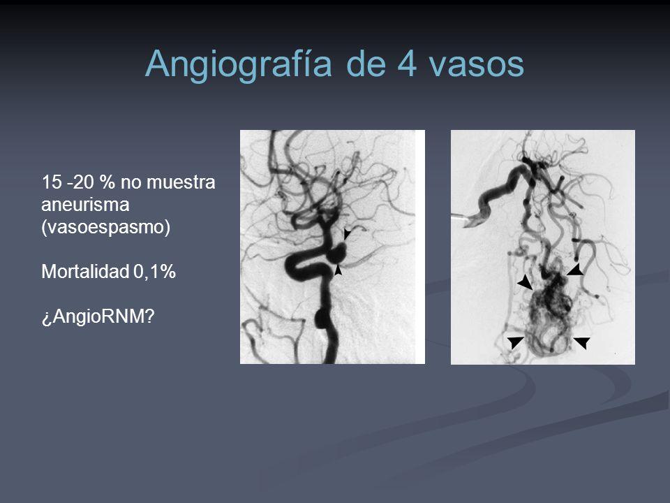 Angiografía de 4 vasos 15 -20 % no muestra aneurisma (vasoespasmo)