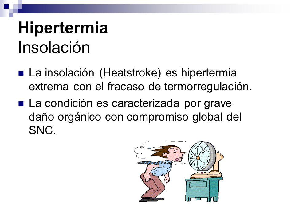 Hipertermia Insolación