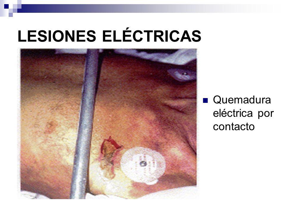 LESIONES ELÉCTRICAS Quemadura eléctrica por contacto