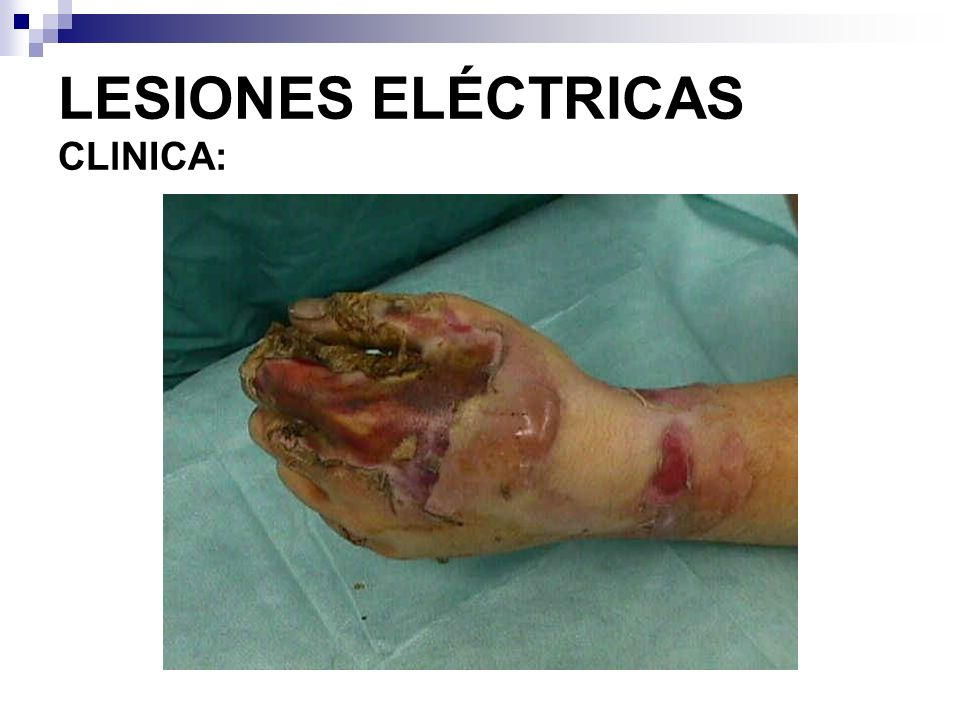 LESIONES ELÉCTRICAS CLlNICA: