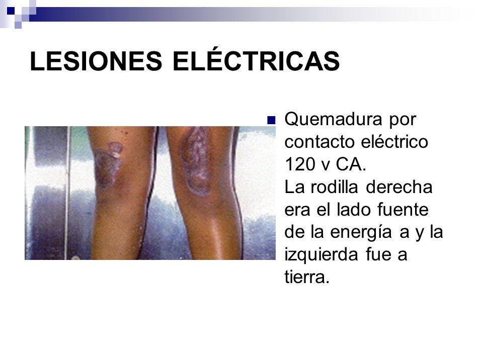 LESIONES ELÉCTRICASQuemadura por contacto eléctrico 120 v CA.