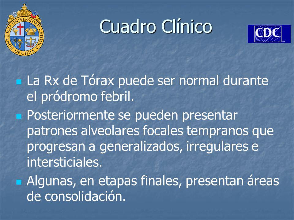Cuadro ClínicoLa Rx de Tórax puede ser normal durante el pródromo febril.