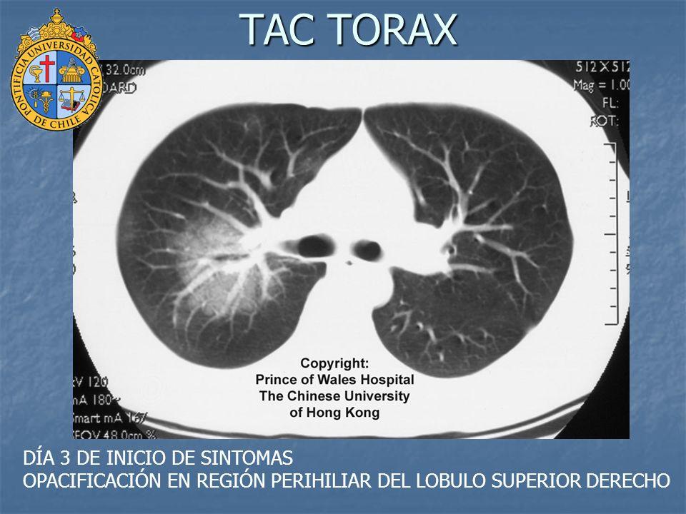 TAC TORAX DÍA 3 DE INICIO DE SINTOMAS OPACIFICACIÓN EN REGIÓN PERIHILIAR DEL LOBULO SUPERIOR DERECHO.