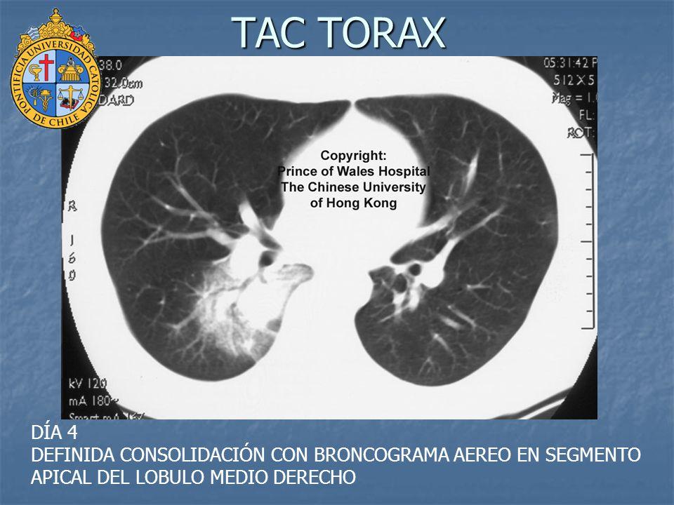 TAC TORAX DÍA 4 DEFINIDA CONSOLIDACIÓN CON BRONCOGRAMA AEREO EN SEGMENTO APICAL DEL LOBULO MEDIO DERECHO.