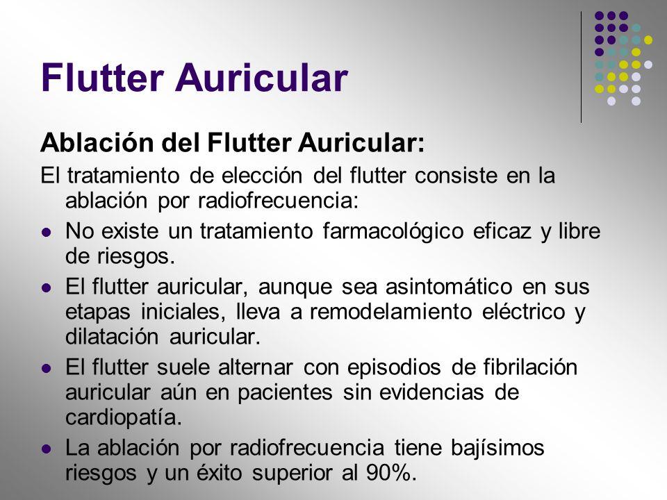 Flutter Auricular Ablación del Flutter Auricular: