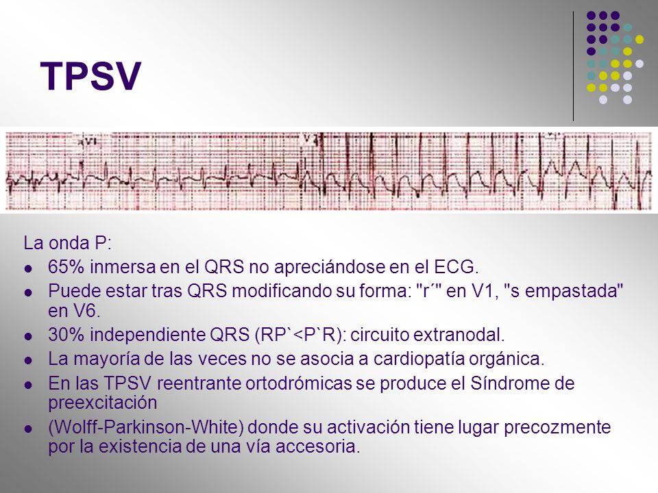 TPSV La onda P: 65% inmersa en el QRS no apreciándose en el ECG.