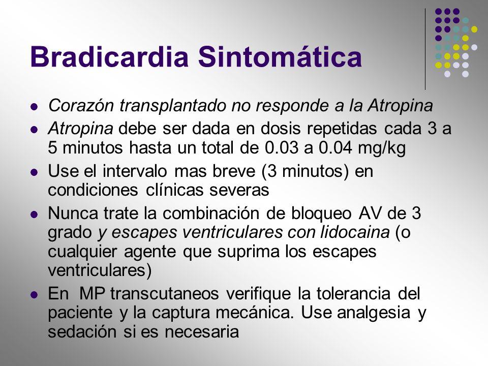 Bradicardia Sintomática