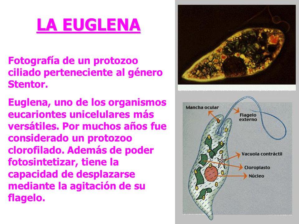 LA EUGLENA Fotografía de un protozoo ciliado perteneciente al género Stentor.