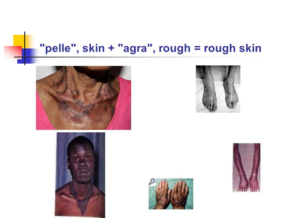 pelle , skin + agra , rough = rough skin