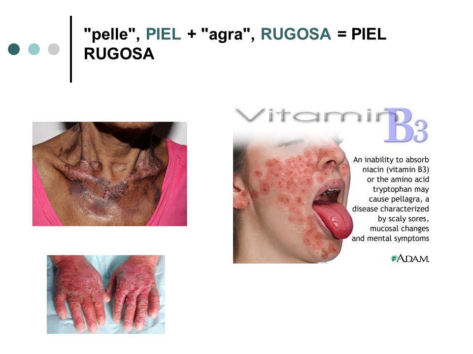 pelle , PIEL + agra , RUGOSA = PIEL RUGOSA