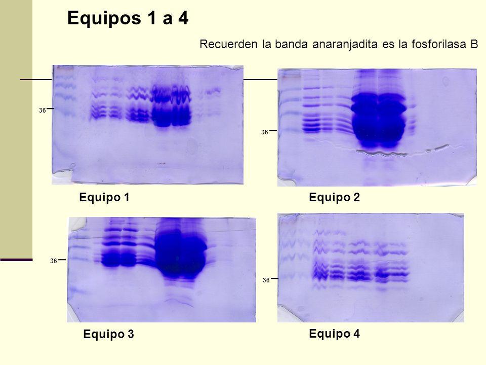 Equipos 1 a 4 Recuerden la banda anaranjadita es la fosforilasa B