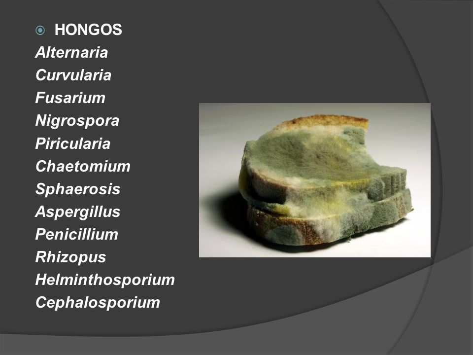 HONGOS Alternaria. Curvularia. Fusarium. Nigrospora. Piricularia. Chaetomium. Sphaerosis. Aspergillus.