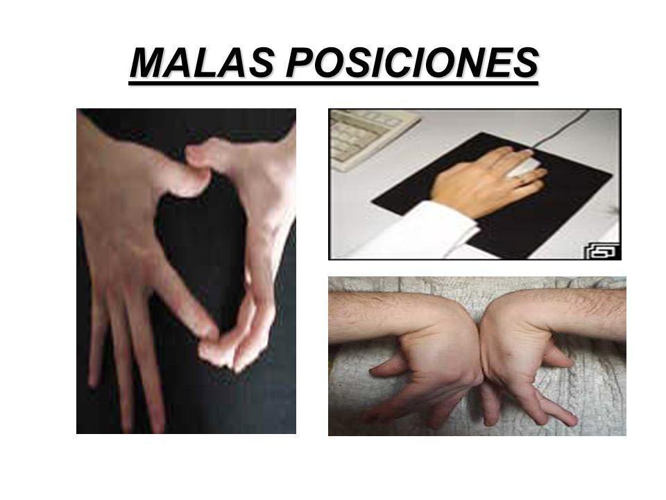 MALAS POSICIONES