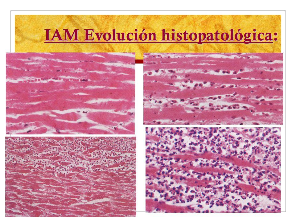 IAM Evolución histopatológica: