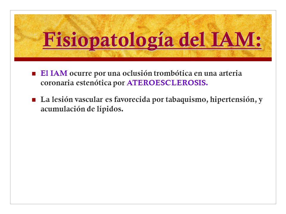 Fisiopatología del IAM: