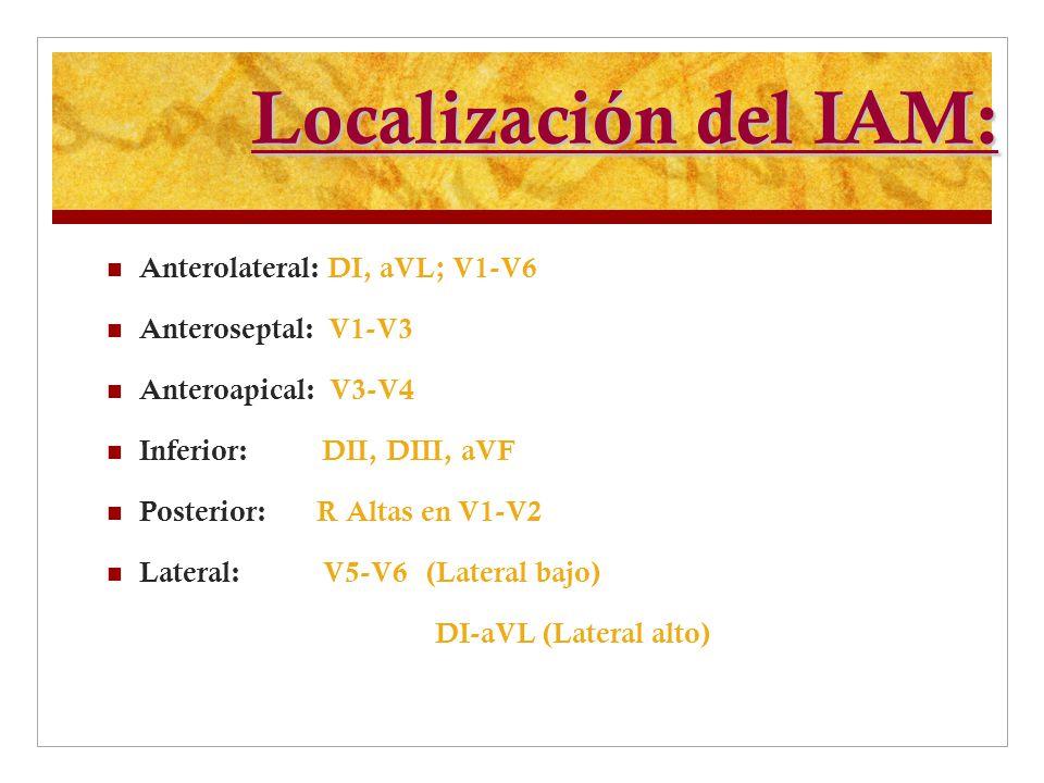 Localización del IAM: Anterolateral: DI, aVL; V1-V6