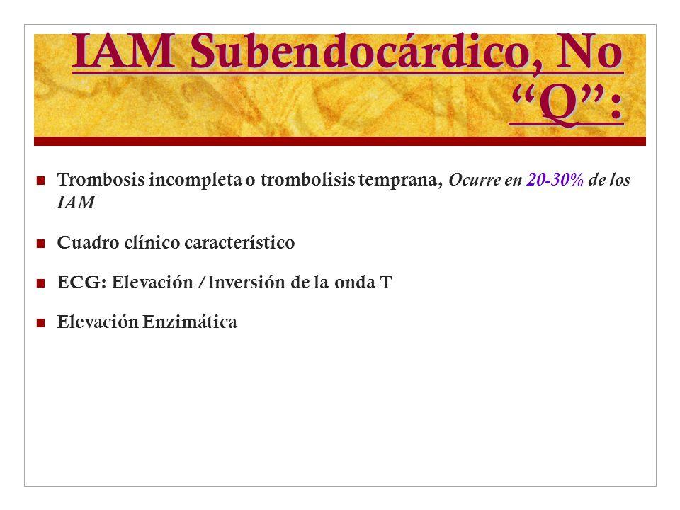 IAM Subendocárdico, No Q :