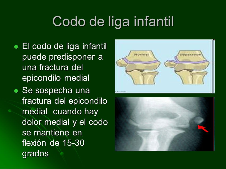 Codo de liga infantil El codo de liga infantil puede predisponer a una fractura del epicondilo medial.