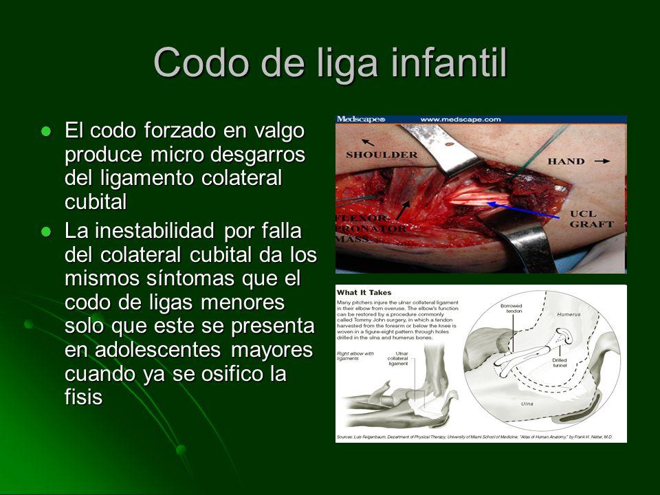 Codo de liga infantil El codo forzado en valgo produce micro desgarros del ligamento colateral cubital.