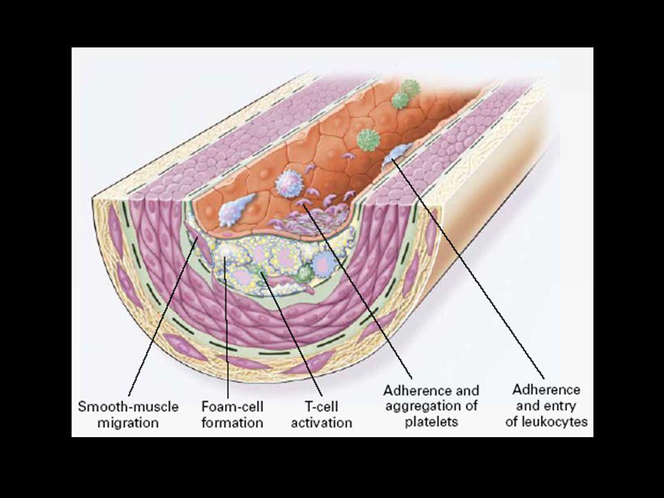 Figure 2. Fatty-Streak Formation in Atherosclerosis.