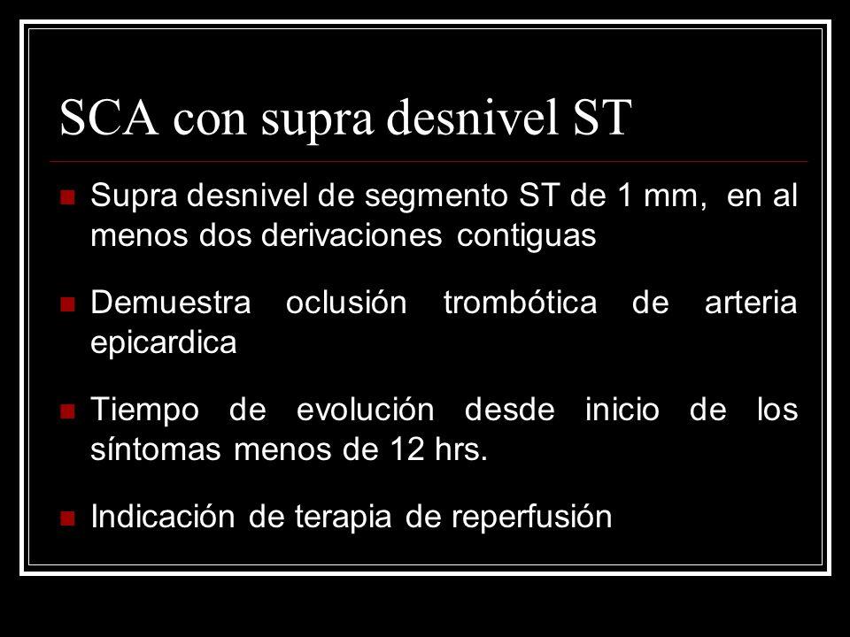 SCA con supra desnivel ST