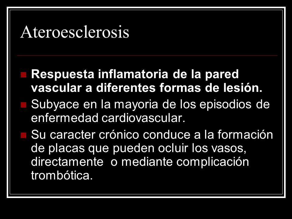 Ateroesclerosis Respuesta inflamatoria de la pared vascular a diferentes formas de lesión.