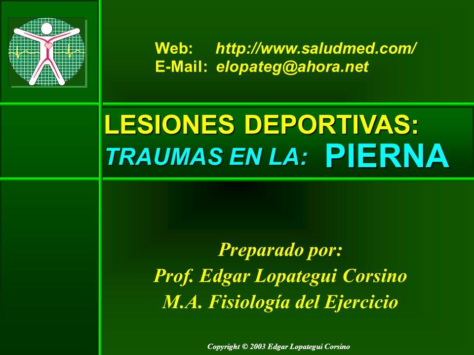 PIERNA LESIONES DEPORTIVAS: TRAUMAS EN LA: Preparado por: